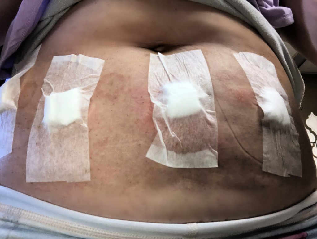 My Side Effects From Subcutaneous IgG Infusions 2